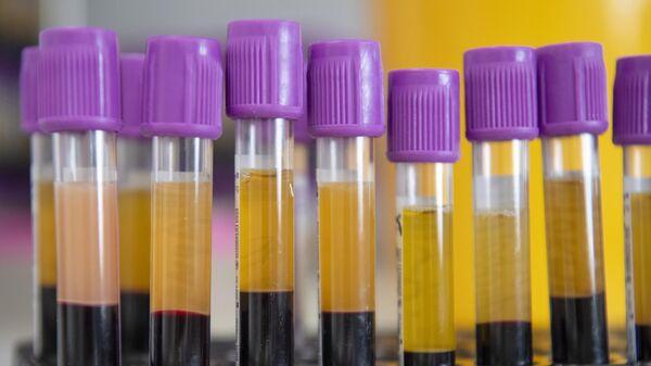 Разделение крови на компоненты в лаборатории