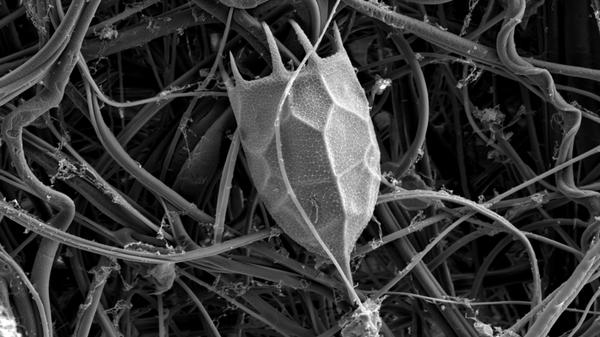 Локуль коловратки Keratella cochlearis, автор Анна Титова