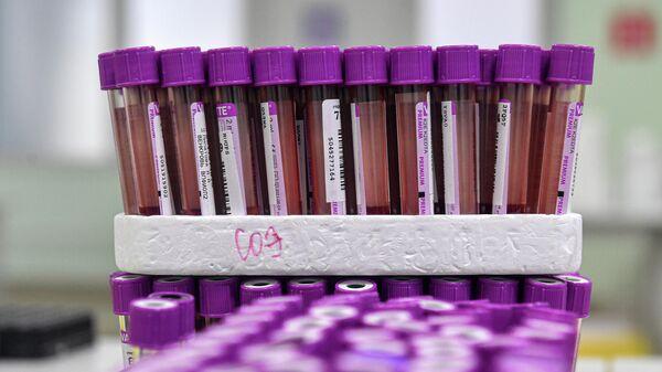 Тесты на антитела к COVID-19 в лабораторном комплексе Helix в Москве