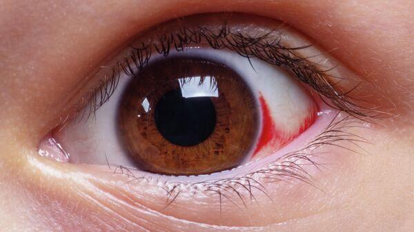 Глаз с гемолакрией