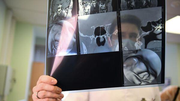 Медицинский работник со снимком пациента