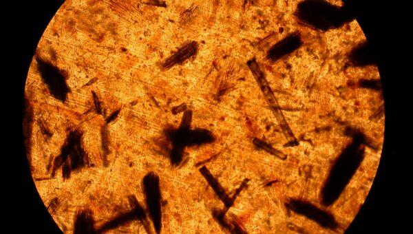 Микрофотография пленки на основе полиэтилена с льняной кострой