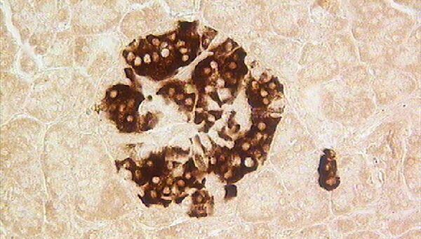 Бета-клетки (В-клетки) в островке поджелудочной железы человека