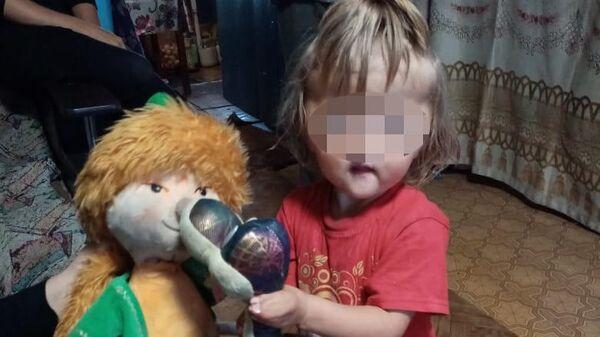 Девочка Софья, родившаяся с деформированным лицом и сросшимися пальцами рук и ног
