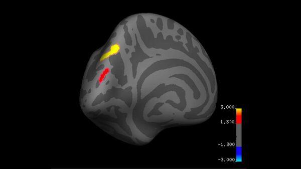 Изменения толщины всего мозга до и после кортикального слоя
