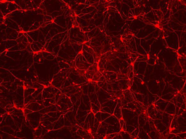 Нейроны, созданные из клеток кожи мышей с помощью воздействия генов