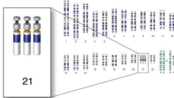 Хромосомный набор человека с трисомией по 21-й хромосоме