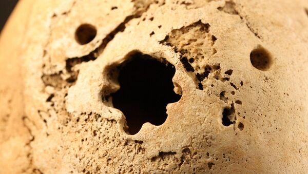 Трепанация поврежденной кости, в районе которой началось воспаление из-за попадания инфекции, архивное фото