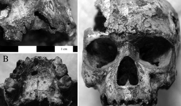 Следы инфекционных заболеваний на черепе из древнего города Хараппы